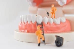 dental bonding to fix a tooth