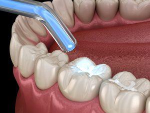 livonia laser dentistry