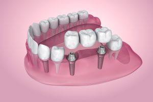 livonia dental bridge