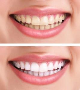 teethwhiteningtransform