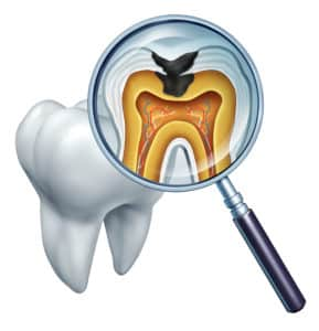 how does a tooth start to decay
