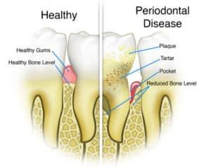 stewart gum disease